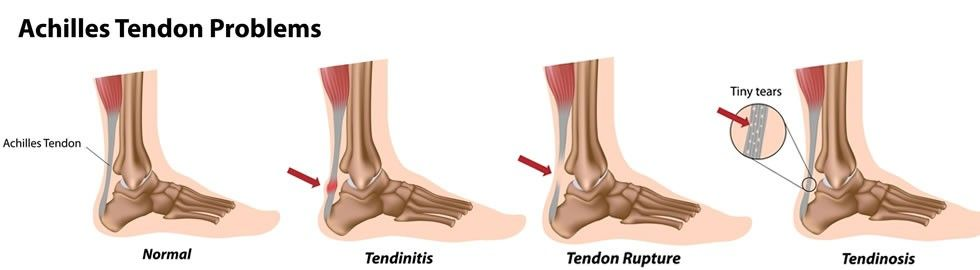 achilles-injuries