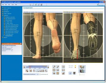 Gait Analysis Tusmore