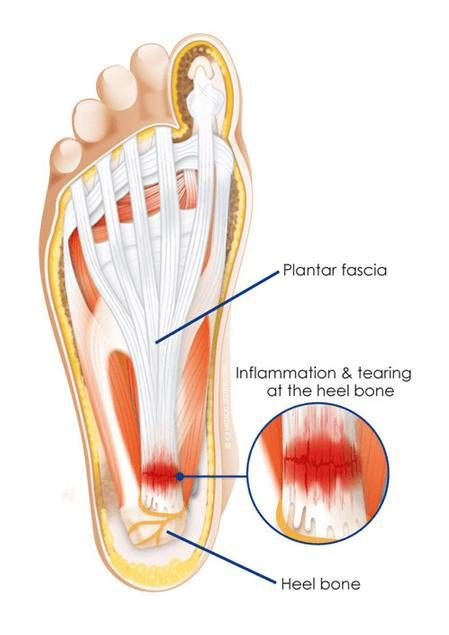 Plantar Fasciitis Nailsworth