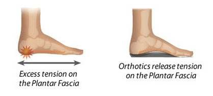 Plantar Fasciitis Treatment near Tusmore