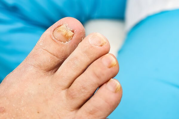 Fungal Nails Adelaide