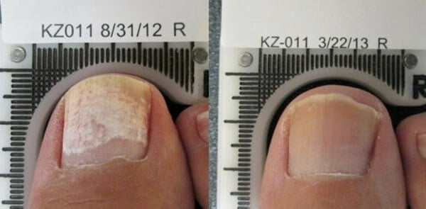 Fungal Nails Relief Adelaide