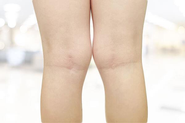 Poor Knee Alignment Adelaide