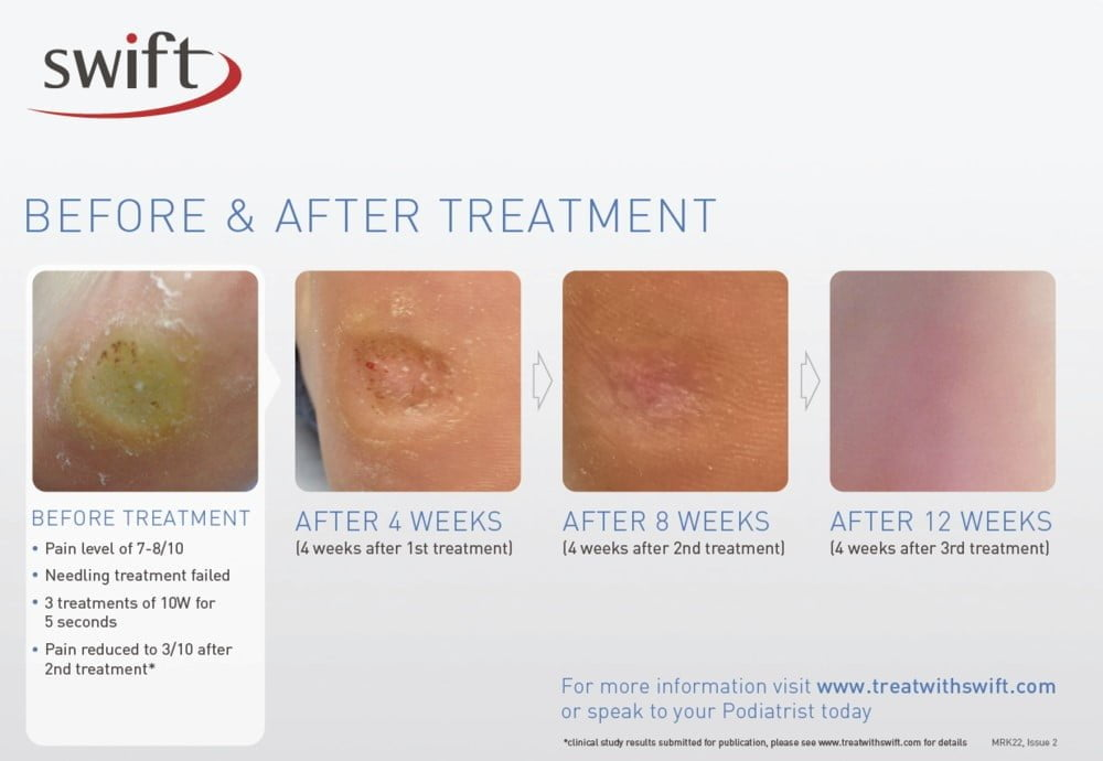 Warts Treatment Adelaide